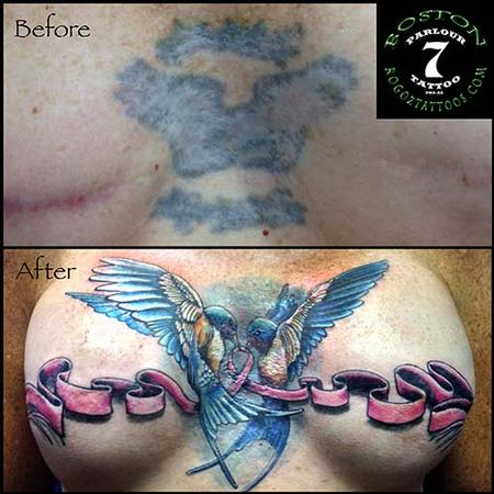 Tattoos - Mastectomy scar cover-up tattoo - 87349