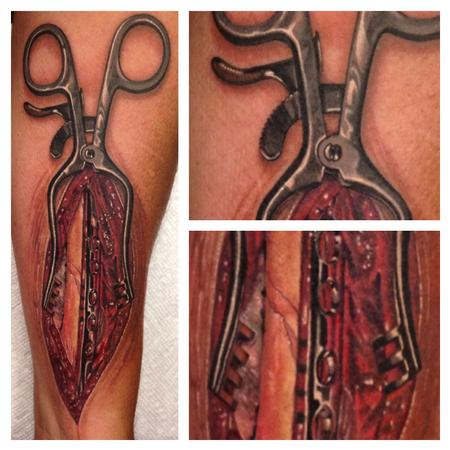 Tattoos - Forceps Opening Forearm - 93658