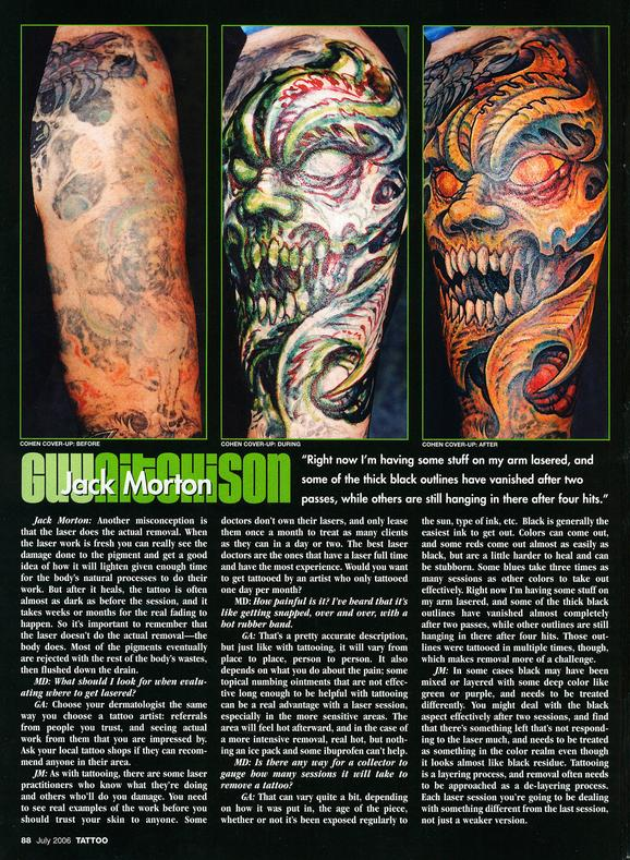 - Laser Article, Tattoo Mag, 2006, Page 3