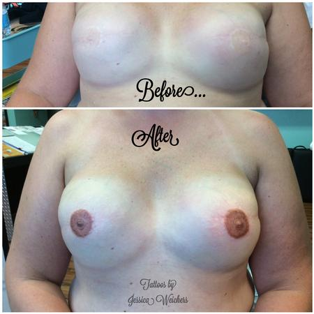 Areola / Nipple Reconstruction Tattoo Design Thumbnail