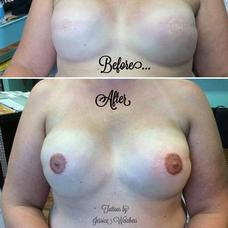Tattoos - Areola / Nipple Reconstruction Tattoo - 120223