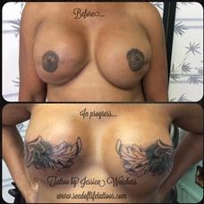 Tattoos - Mastectomy coverup  - 109516