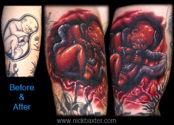 Nick Baxter - Fetus Rework