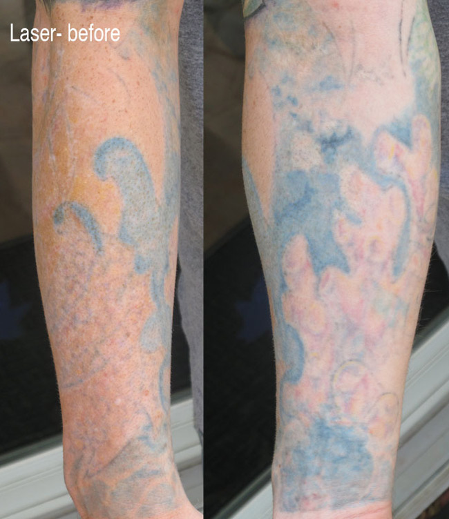 laser tattoo removal and coverup
