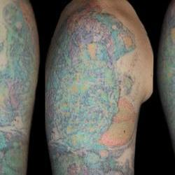 Tattoos - David, after 6 laser sessions  - 71524