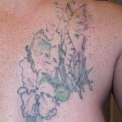 Tattoos - Suzanne, after four laser sessions - 71541